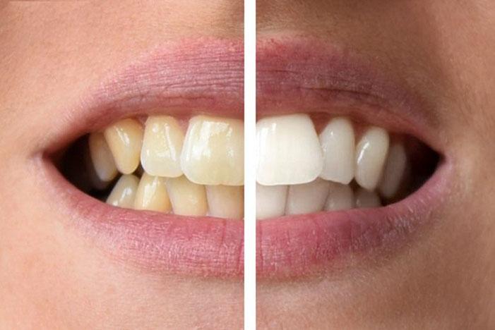مراقبت های بعد از بلیچینگ دندان