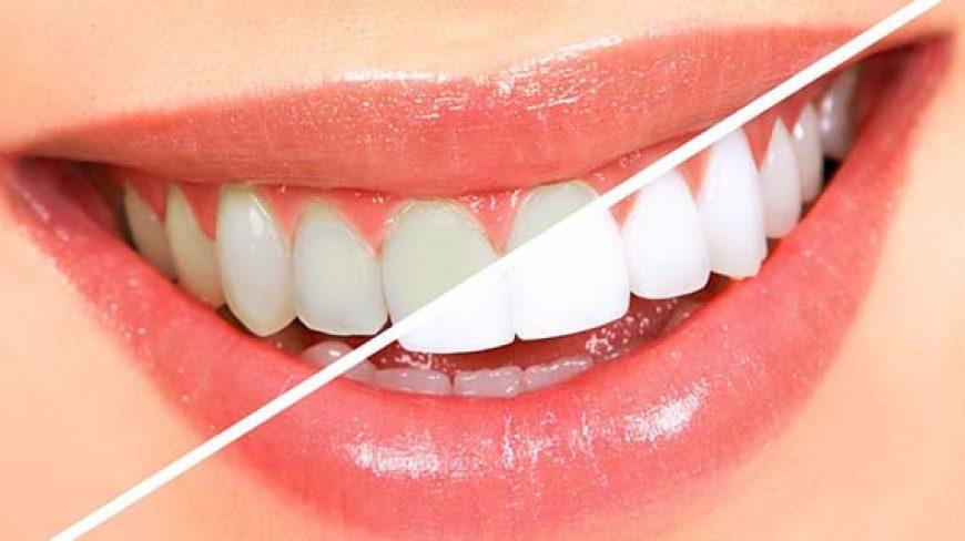 سفید کردن دندان، از بلیچینگ تا لمینت