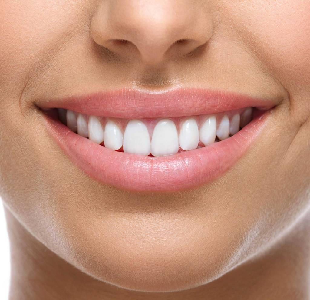 مراقبت های لازم پس از انجام لمینت دندان
