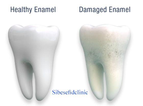 روند فرسایش مینای دندان