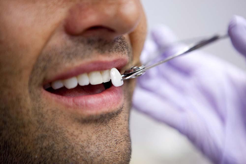 انجام لمینت دندان چه شرایطی دارد؟