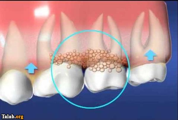 عفونت دندان چیست؟
