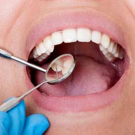 درمان لق شدن ایمپلنت دندان