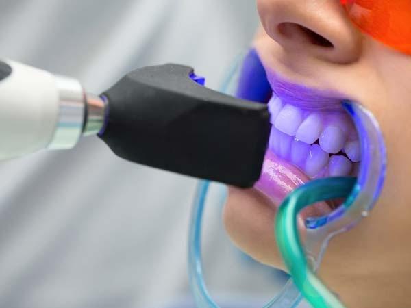 عوارض بیلیچینگ دندان و مزایای بلیچینگ با لیزر: