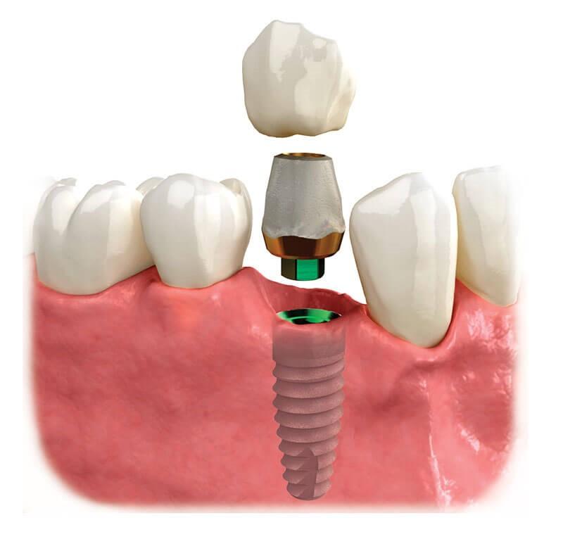 بررسی و معاینه ایمپلنت دندان