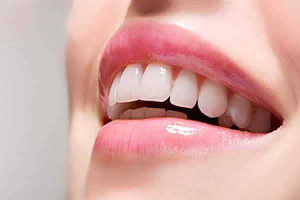 فرق کامپوزیت و لمینت دندان و معایب هرکدام
