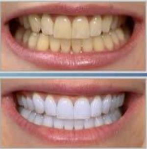 رابطه ی جرم گیری دندان و لق شدن دندان ها در چیست؟