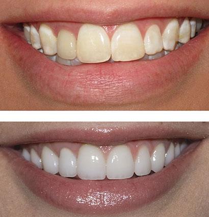 آماده کردن دندان برای بلیچینگ