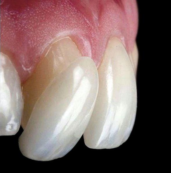 مزایا و معایب باندینگ دندان