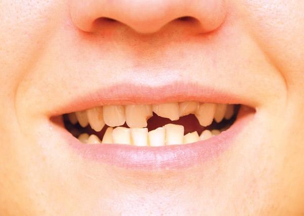 در چه صورتی لمینت از دندان جدا می شود؟