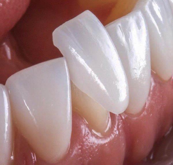 عوارض عدم رعایت بهداشت روکش دندان