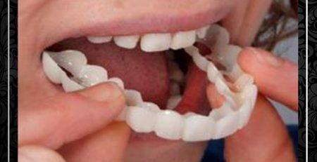 مراحل لمینت کامپوزیت ونیر دندانها