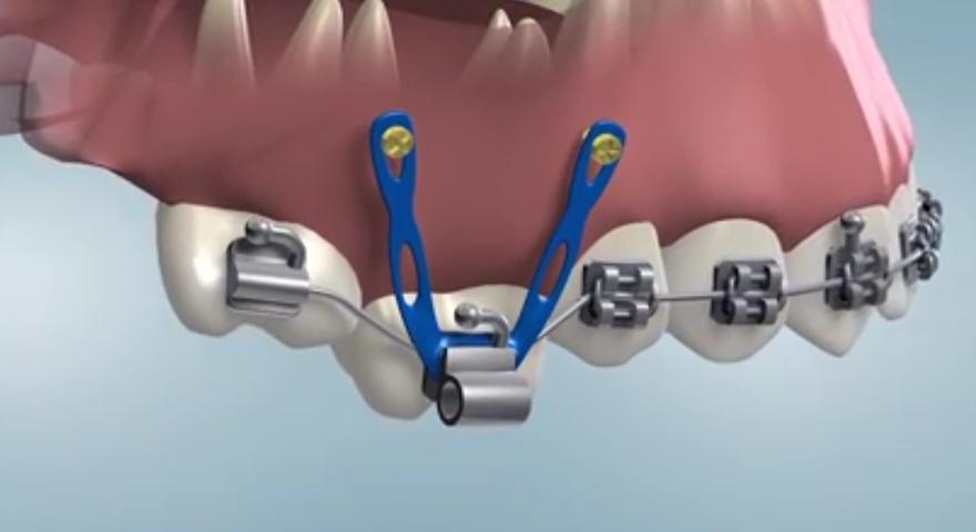 دستگاههای خارج دهانی