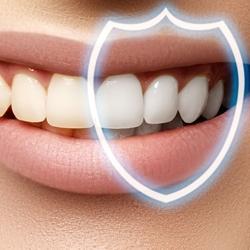 تفاوت بلیچینگ دندان و لمینت