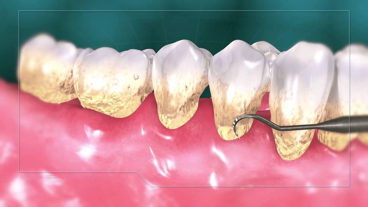 جرم گیری دندان به چند طریق انجام می شود؟