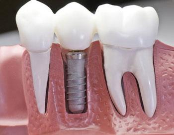 بریج دندان جلو در ایمپلنت