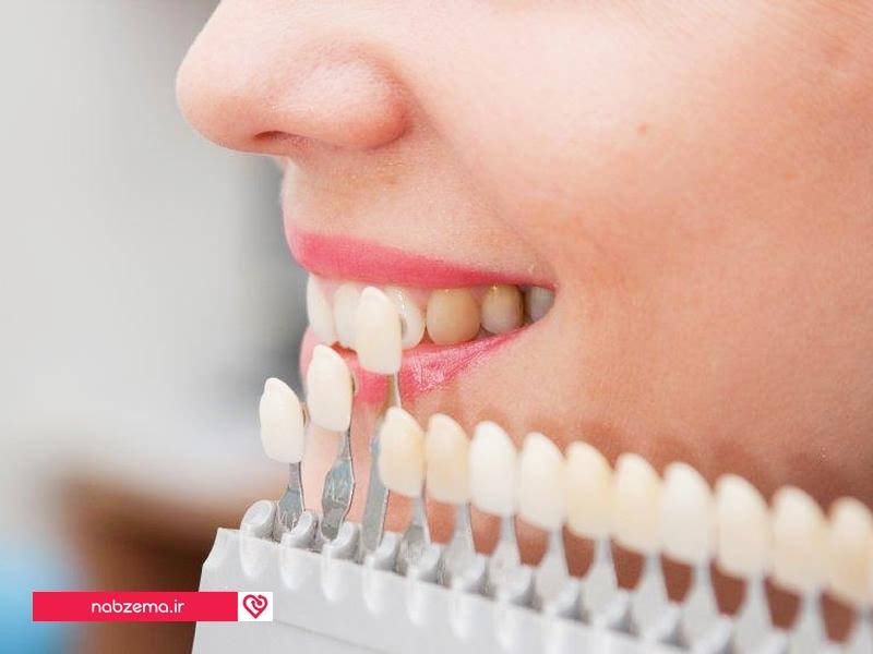 مزایای لامینت کردن دندانها