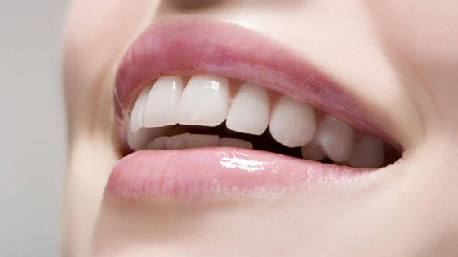 قبل و بعد از بلچینگ کردن دندان ها