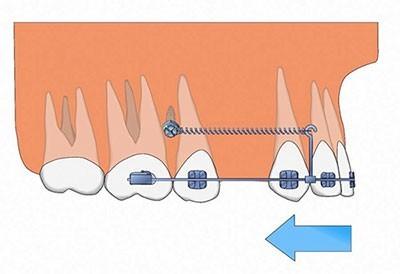 روشهای داخل دهانی
