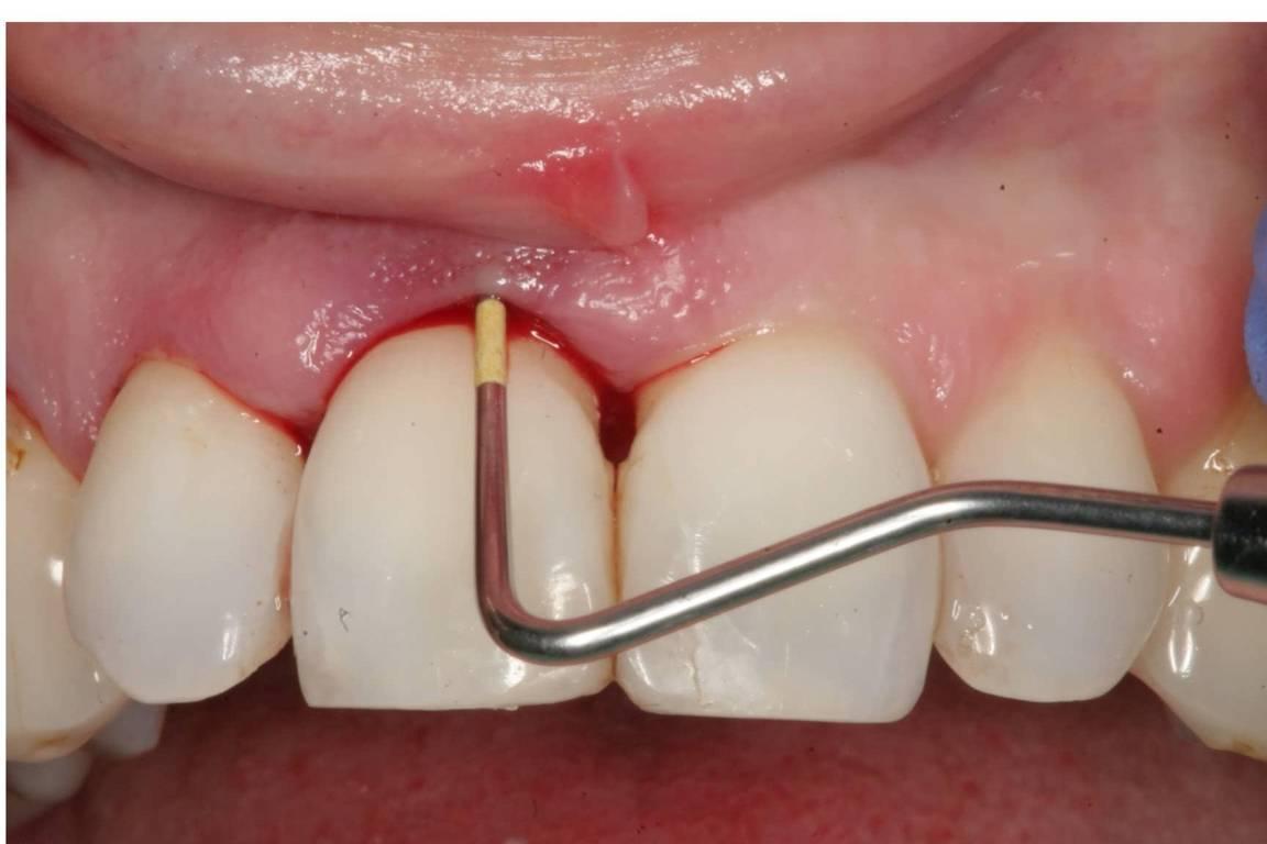 جرم دندان چیست؟
