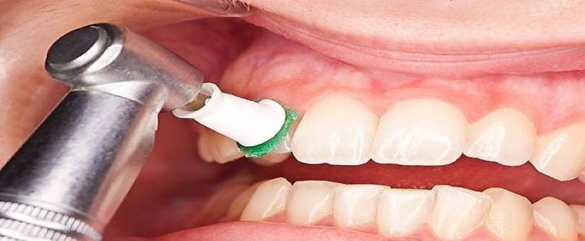 چرا جرم دندان به وجود می آید؟