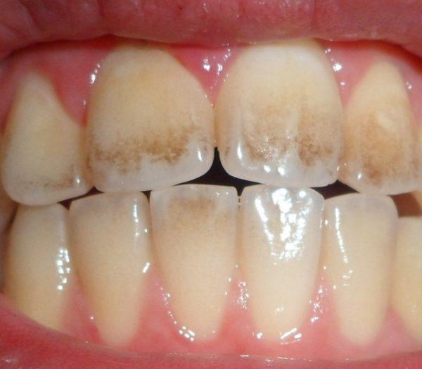 جرمگیری مینای دندان