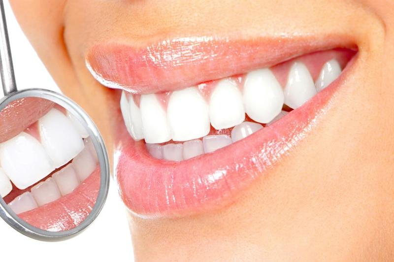 آیا از صفر تا صد بلیچینگ دندان خبر دارید؟