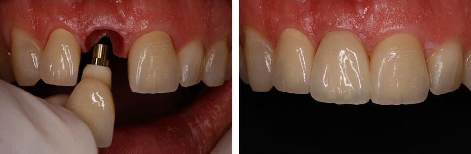 فاصله زمانی مناسب بین کشیدن دندان تا ایمپلنت گذاری چقدر است؟