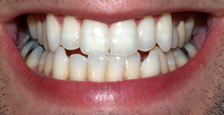 آیا تمام دندانها به یک اندازه سفید میشوند؟