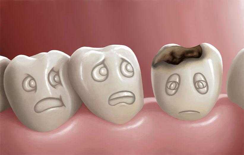 مواردی که باعث تخریب دندان می شود