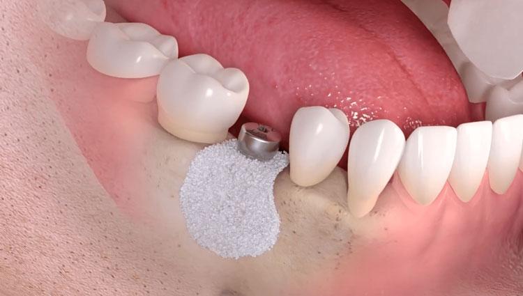 علل مؤثر بر موفقیت ایمپلنت دندان