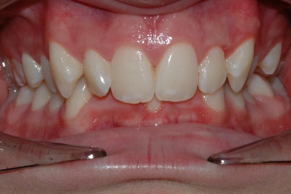 همپوشانی بیش از حد دندانها