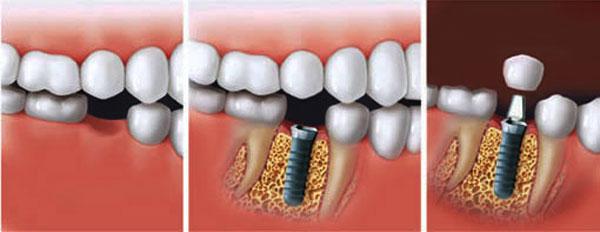 ایمپلنت دندان چه تفاوتی با دندان طبیعی دارد؟