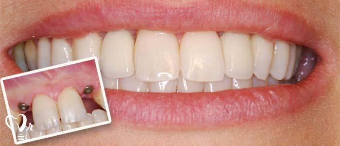 عوامل لق شدن ایمپلنت دندان