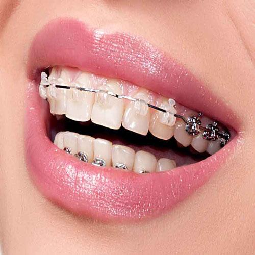 عقب بردن دندان ها به کمک ارتودنسی