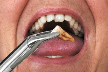 علائم لق شدن ایمپلنت دندان